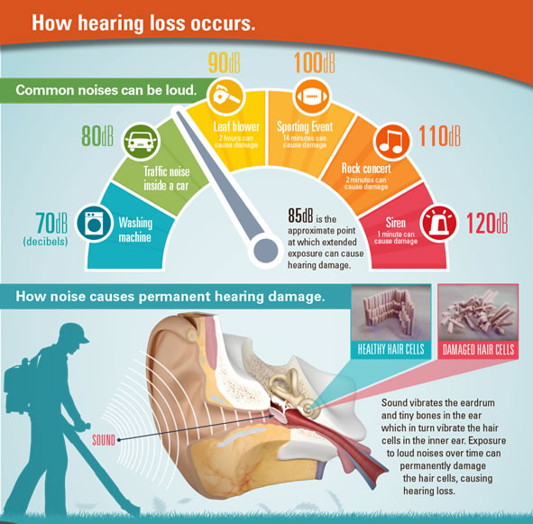 Hearing loss info graphic